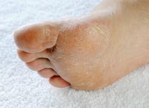Dry Feet Lithonia GA