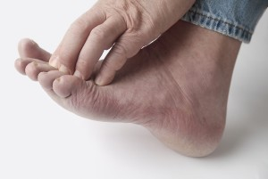 Area of the Foot Where Corns Form