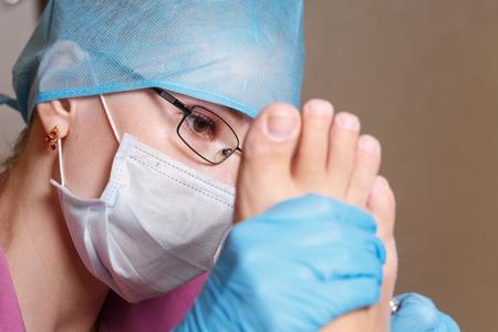 calluses-corns-removal