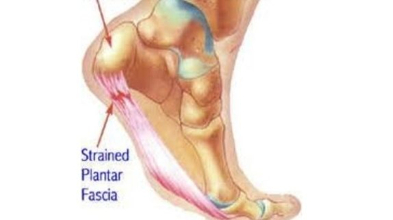 7c6c7548a9 Plantar Fasciitis – Snellville, GA Podiatrist Joshua Mann Specializes in Heel  Pain Relief