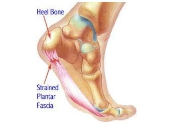 ee0b932ce7 Plantar Fasciitis – Snellville, GA Podiatrist Joshua Mann Specializes in Heel  Pain Relief